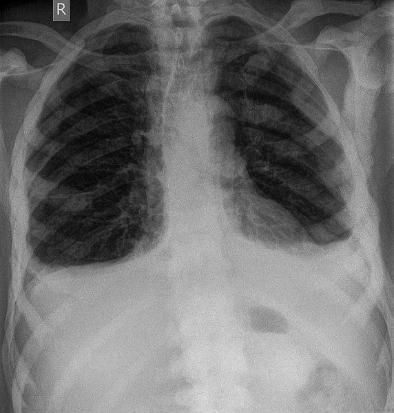 File:Prostata-Ca ossaere Metastasen Thorax.jpg