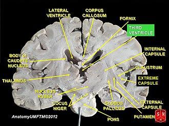 Third ventricle - Image: Slide 3kk