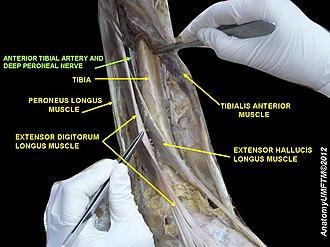 Anterior tibial artery - Image: Slide 7RRRR
