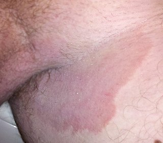 Tinea cruris type of fungal infection of the groin region in either sex, though more often seen in males