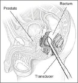la prostatite può essere diagnosticata con lecografia transrettale?