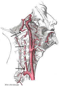 Arteries of the neck. The vertebral arteries arise from the subclavian arteries and join to form the basilar artery. It is pointed out, centermost of the three vertical arteries.