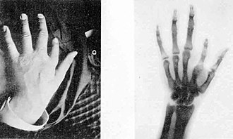 "X-ray - 1896 plaque published in ""Nouvelle Iconographie de la Salpetrière"", a medical journal. In the left a hand deformity, in the right same hand seen using radiography. The authors designated the technique as Röntgen photography."