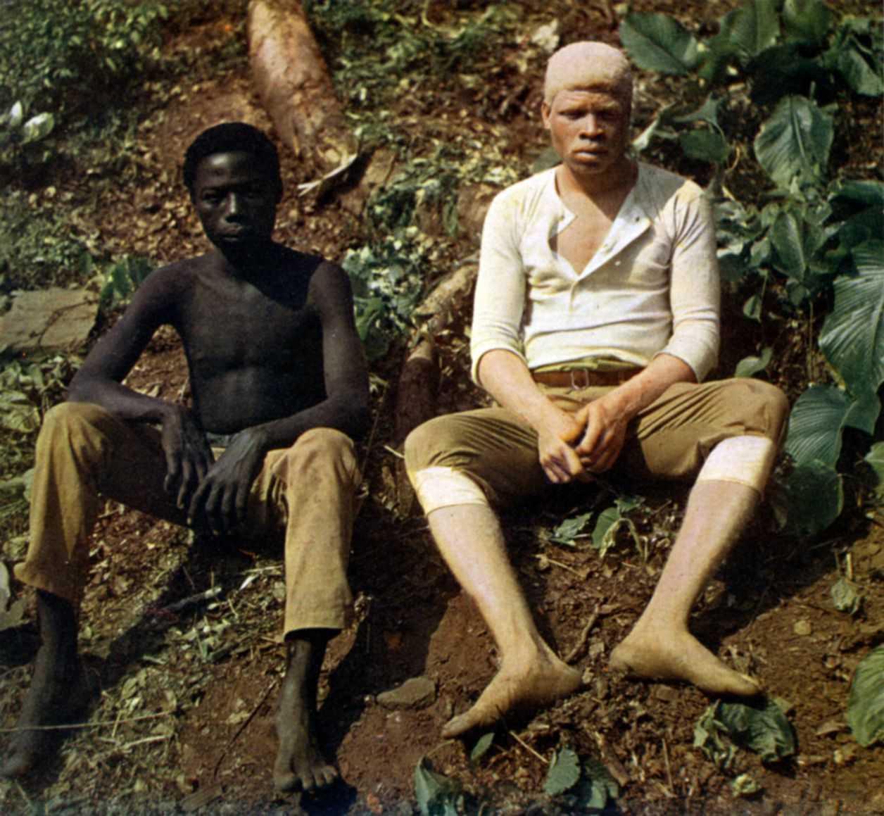 albino wiki