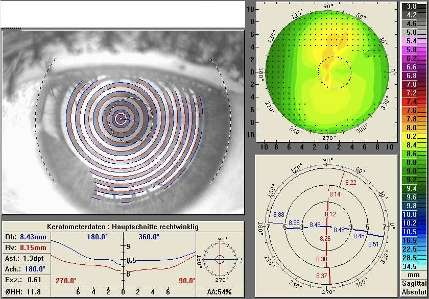 astigmatism myopia compositus)