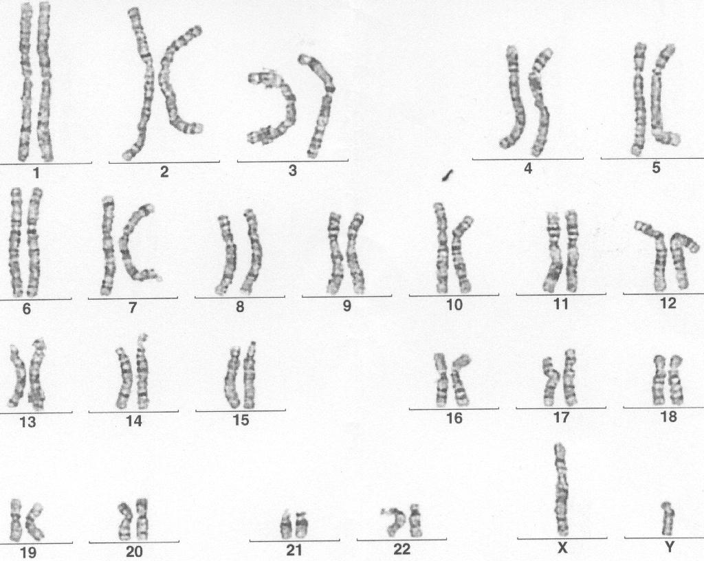 Unterschied und frau karyogramm mann Karyogramm (Chromosomenanalyse)