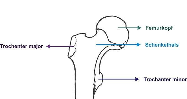 Hüftkopffraktur - Wikiwand