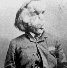 "Joseph Carey Merrick ""The Elephant Man"""