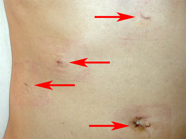 Resultado de imagen de laparoscopy gallbladder incision