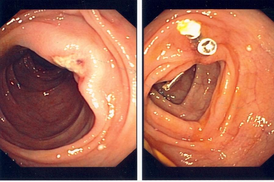 File Postpolypectomy Ulcer Jpg Wikipedia