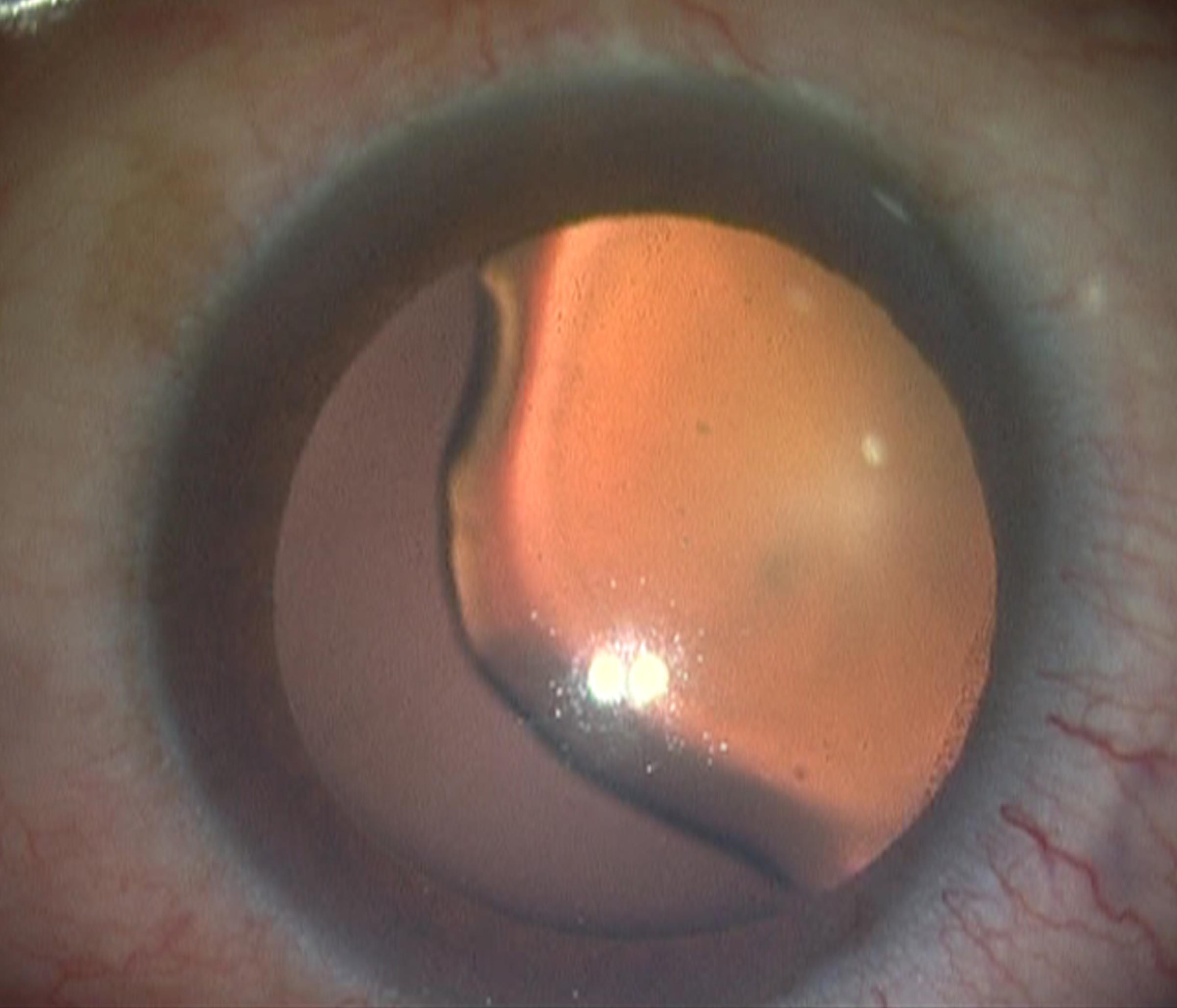 Intraocular Lens (IOLs)