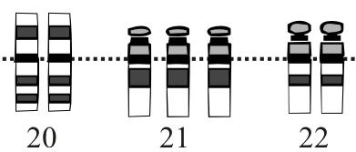 FileDown Syndrome Karyotype20 22