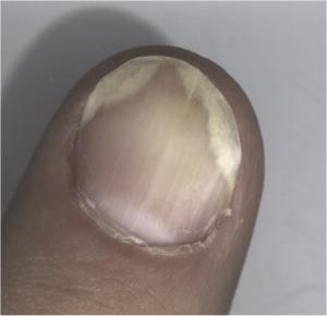 Psoriasis of a fingernail