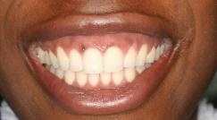 Black spots on gums