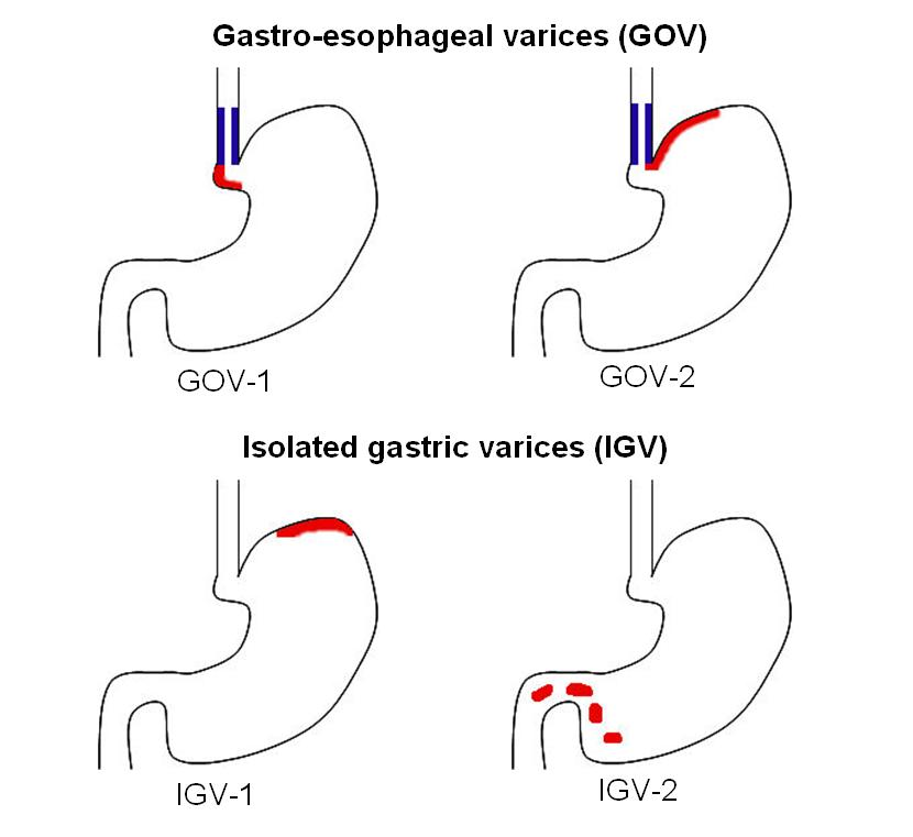 Gastric Varices Wikipedia