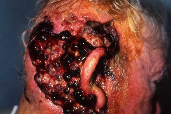Five Warning Signs of Basal Cell Carcinoma - SkinCancer.org