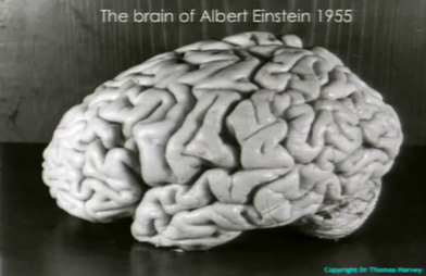 Albert Ajnštajn Einstein_brain_-_T.Harvey