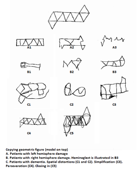 File:Re-created geometric drawings from patients with left and right ...
