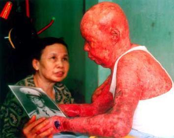 File Agent-Orange-dioxin-skin-damage-Vietnam jpgOrange Human Skin