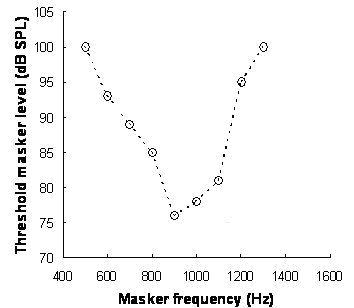 Sensorineural Hearing Loss Wikipedia
