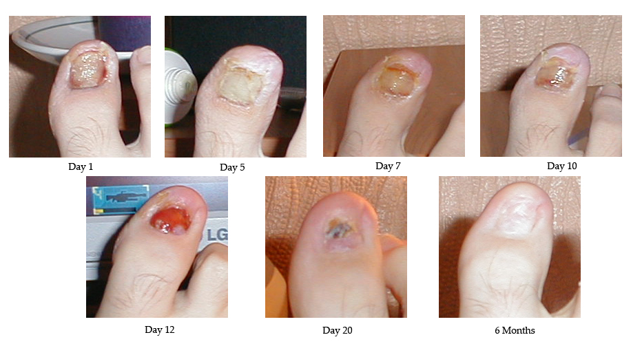 Surgical treatment of ingrown toenails - Wikipedia