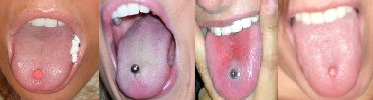 Straight barbells with either plastic or metal beads are commonly worn in tongue piercings. Tongueringpictures.PNG