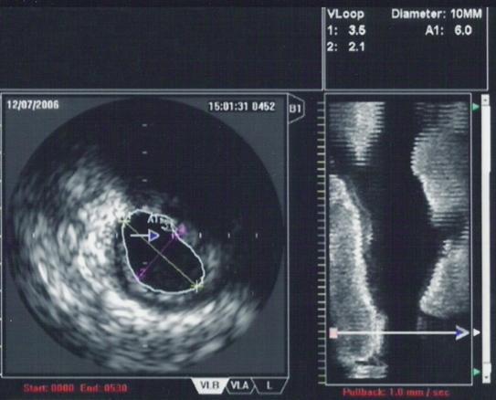 Intravascular ultrasound - Wikipedia