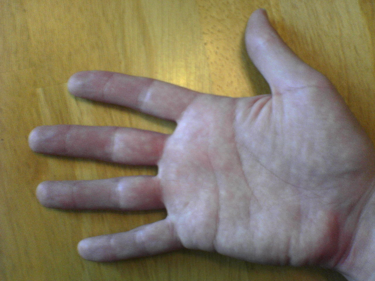 File:Right hand.JPG  Wikipedia, the free encyclopedia