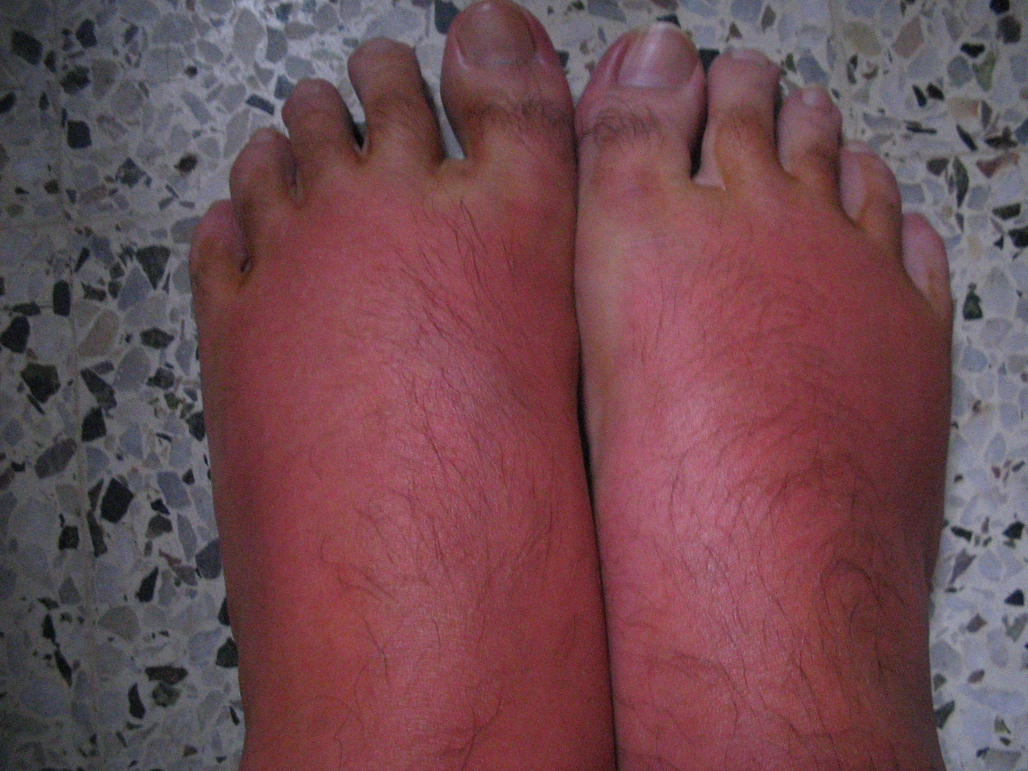 sunburned feet
