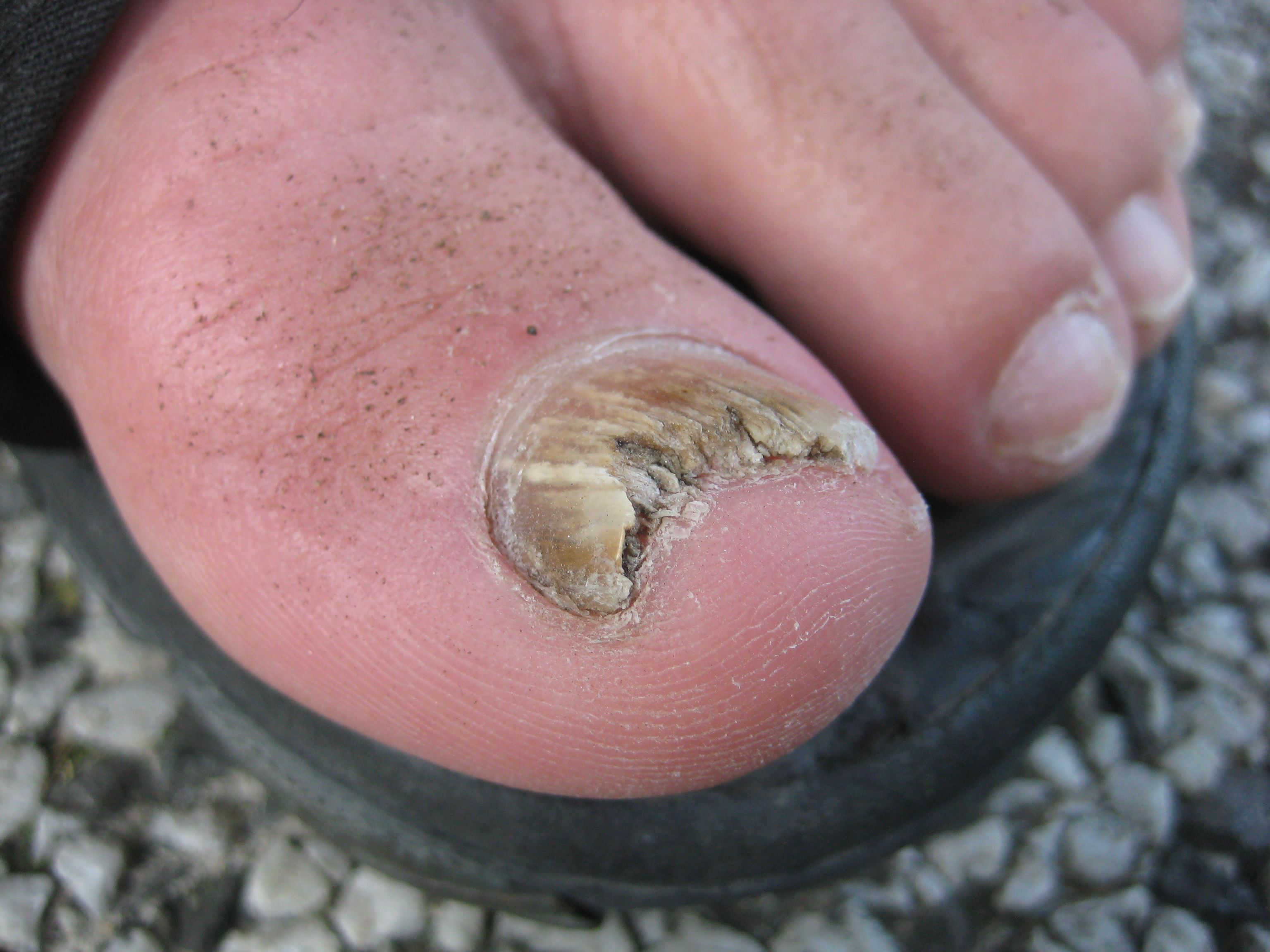 Causes of Nail Fungus & Symptoms of Toenail Infections