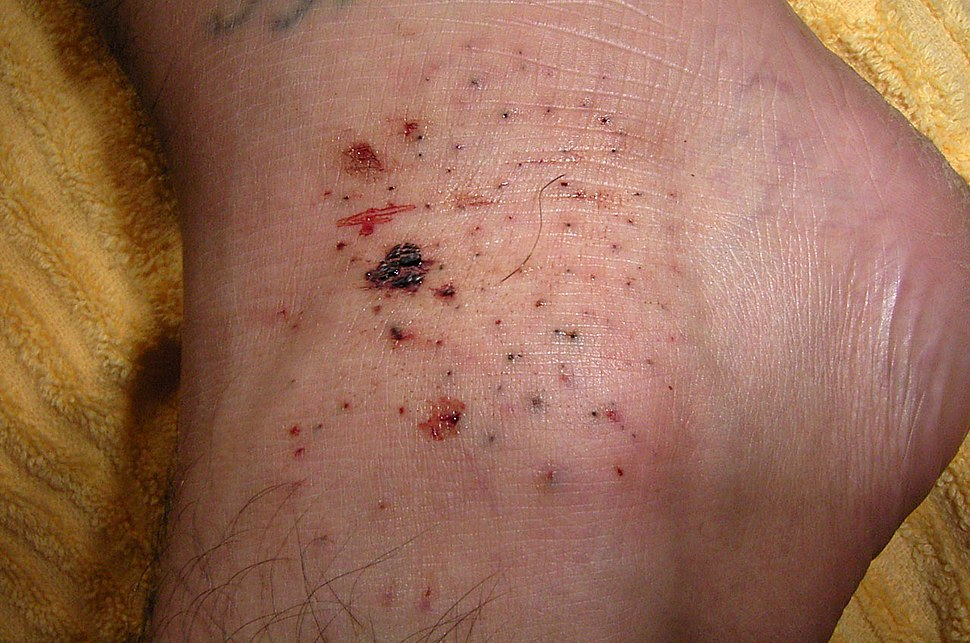 Sea-urchin-injury