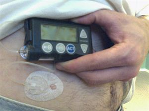 Minimed Paradigm - Pump and infusion set (catheter) placement.
