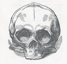Sketch of Jacque Alexander Tardy's skull front view.jpeg