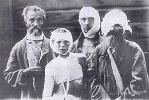 Pogrom - Pogrom victims in Alexander Hospital, Kiev, 1919. Credit: Elias Tcherikower
