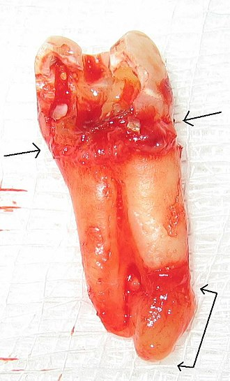 Endodontic therapy - Image: Chronic apical periodontitis (with arrows)