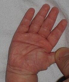 Flexion Deformity Of Left Ring Finger Icd