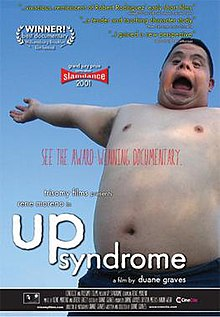 Up Syndrome poster.jpg