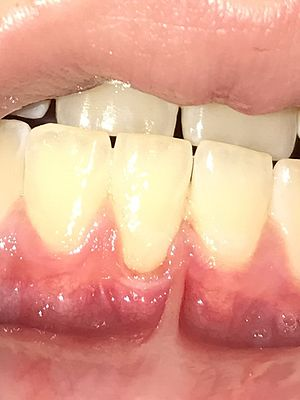 Gingival recession - Advanced gingival recession. Note particularly severe recession on leftmost incisor.