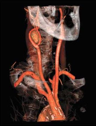 Bolus tracking - Volume Rendered Carotid Angiogram