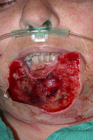 Lip reconstruction - Image: Totallip