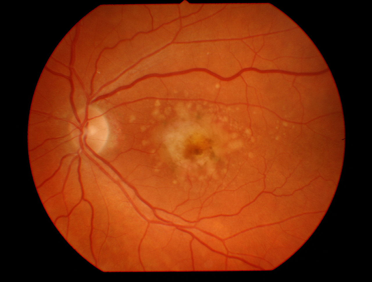 macular dystrophy retina - photo #19