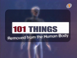 101 Things Removed from the Human Body.png