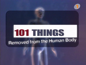 101 Things Removed from the Human Body - Image: 101 Things Removed from the Human Body