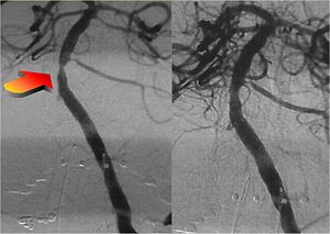 Interventional neuroradiology - Intra-Cranial Angioplasty and Stent of Basilar Artery Stenosis.