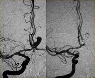 Interventional neuroradiology - Endovascular repair of cerebral aneurysm.