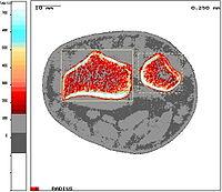 pQCT-measurement at distal radius (cross-sectional image)