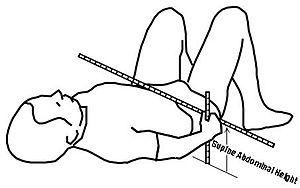 Sagittal abdominal diameter - SAH measure using supine abdominal height