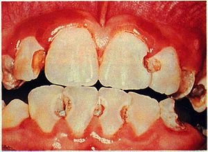 This is an example of Dental Erosion