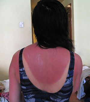 New finding could lead to sunburn-healing drugs