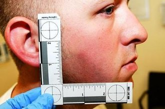 Shooting of Michael Brown - Bruising on Wilson's face after the shooting